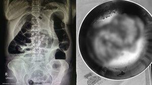 แพทย์เตือนท้องผูกเรื้อรัง กินยาระบายบ่อย เสี่ยงลำไส้อุดตัน