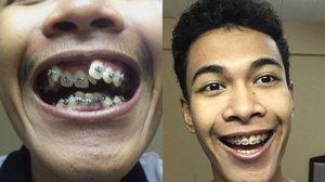 ดัดฟันหนึ่งปีสามเดือน หนุ่มเปลี่ยนตัวเองจากฟันเก เป็นฟันเรียงสวย