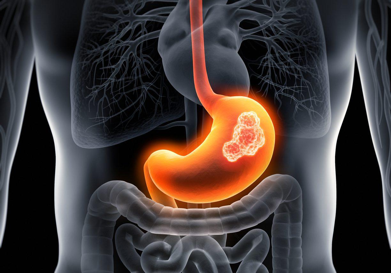 7 สัญญาณเตือน มะเร็งกระเพาะอาหาร ที่คุณไม่ควรมองข้ามก่อนสายเกินไป!!