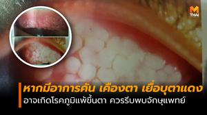 หมอเตือน! หากคันตา เคืองตา อาจเกิดโรคภูมิแพ้ขึ้นตา ควรรีบพบจักษุแพทย์