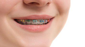 เลือกสียางจัดฟัน ตามวันเกิด เสริมเสน่ห์ เพิ่มพลังให้คำพูดน่าเชื่อถือมากขึ้น!