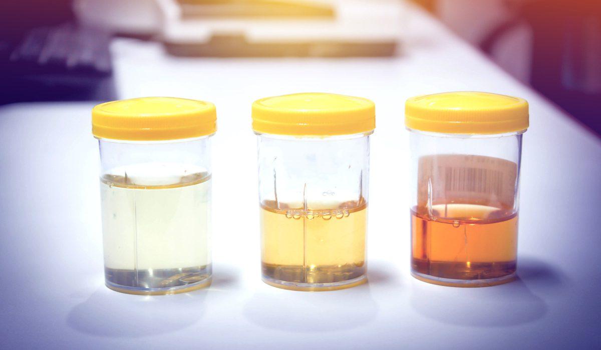 7 สีปัสสาวะ บอกโรคได้ ลองมาเช็กดูว่าปัสสาวะของคุณสีอะไร?