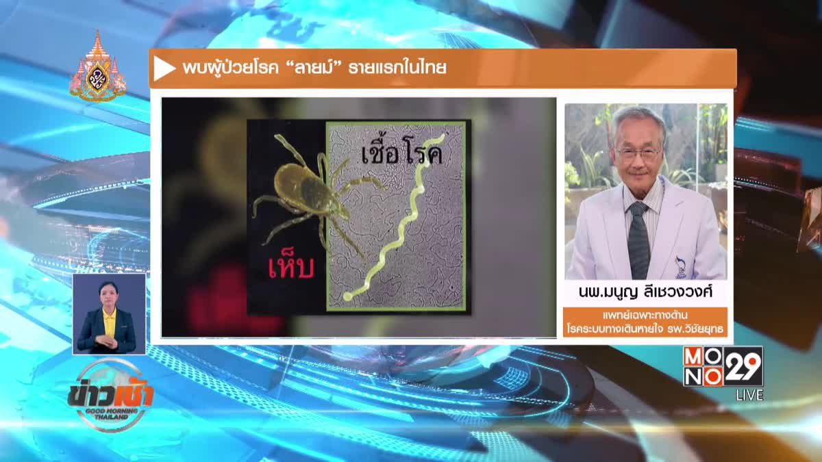 """พบผู้ป่วยโรค """"ลายม์"""" รายแรกในไทย"""