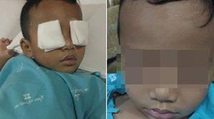 เตือน! อย่าปล่อยลูกน้อยดูทีวี-มือถือ นานๆ อาจป่วยตาอักเสบรุนแรงได้