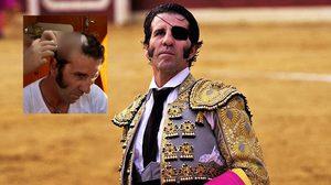 หวาดเสียว!! มาทาดอร์ ชาวสเปนหวิดสิ้นชื่อ หลังโดนวัวกระทิงขวิดจนหนังศรีษะเปิด