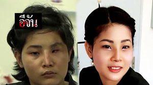 เอาใจช่วย! คลินิกเกาหลี ติดต่อศัลยกรรมให้ 'น้องจูน' เหยื่อสามีซ้อมเสียโฉม