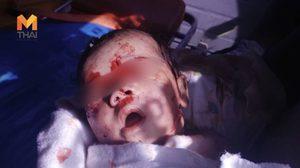ทารกวัย 19 วัน ถูกสุนัขจรจัดขย้ำสาหัส ใบหน้าศีรษะและลำคอเละ พบแผลฉกรรจ์ 10 แห่ง