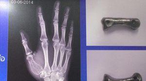 สุดยอด! แพทย์ไทยผ่าตัดใส่กระดูกเทียม แทนกระดูกนิ้วหัวแม่มือรายแรกของโลก