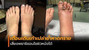 เพจดังเตือนระวัง ถอดรองเท้าเดินหาดทราย เสี่ยงพยาธิชอนไชผิวหนัง