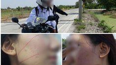 พบตัวแล้ว ! หนุ่มโยนเบ็ดเกี่ยวคอสาวขับจักรยานยนต์ ที่ปทุมธานี