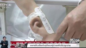 แพทย์จีนสร้างใบหูจากกระดูกอ่อนขึ้นใหม่ก่อนเลี้ยงที่แขนผู้ป่วย