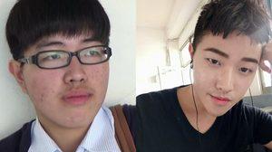 หนุ่มจีนเรียนเสริมหล่อจากยูทูป เปลี่ยนจากหนุ่มเห่ยเป็นหนุ่มหล่อ