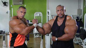 น่ากลัวไปนะ!! สองพี่น้องชาว บราซิล ฉีดสารเคมีอันตรายเข้าร่างกาย เพื่อให้กล้ามใหญ่ขึ้น