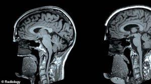 คนอ้วนต้องระวัง!! ผลวิจัยชี้ ไขมันในร่างกายมากเกินไป ส่งผลให้สมองมีขนาดลดลง