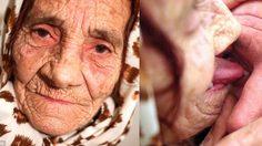 หญิงชรา วัย 80 ปี อ้างว่า รักษาดวงตาได้ด้วยปลายลิ้น!!