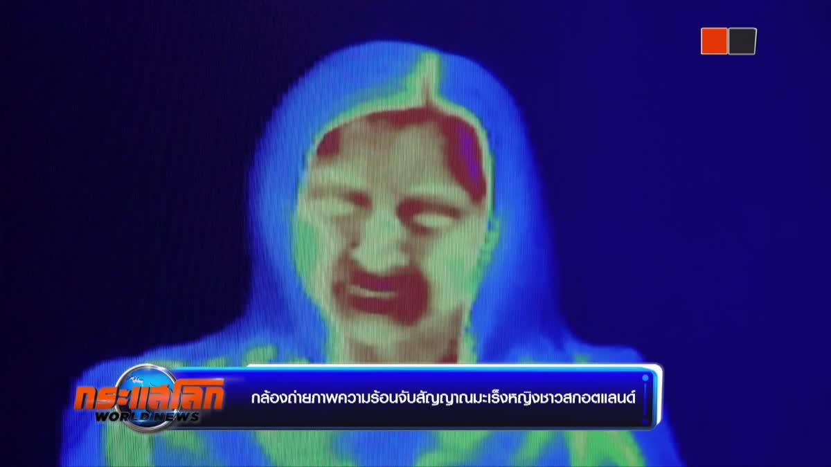 กล้องถ่ายภาพความร้อนจับสัญญาณมะเร็งหญิงชาวสกอตแลนด์
