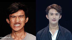 เอ็กซ์ Let Me in Thailand หนุ่มฟันไม่เข้า เปลี่ยนชีวิตจากหน้ามือเป็นหลังมือ