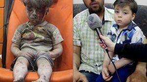 เปิดภาพล่าสุด  ออมราน ดักนีช หนูน้อยชาวซีเรีย ผู้รอดชีวิตจากเหตุระเบิด