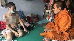 พระบิณฑ์ วอนคนช่วยเหลือ สาวป่วยมะเร็งระยะสุดท้าย หวังมีเงินไว้จัดงานศพตัวเอง