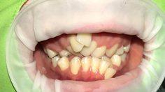 กรม สบส.เตือน! จัดฟันแฟชั่นอันตรายมาก เหงือกอักเสบ-รากฟันละลาย-ได้รับสารปรอท