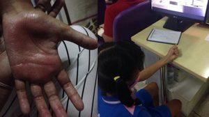 เด็ก ป.3 ถูกครูตีด้วยไม้บรรทัดเหล็กจนมือบวม เพราะลบเลข 4 หลักไม่ได้