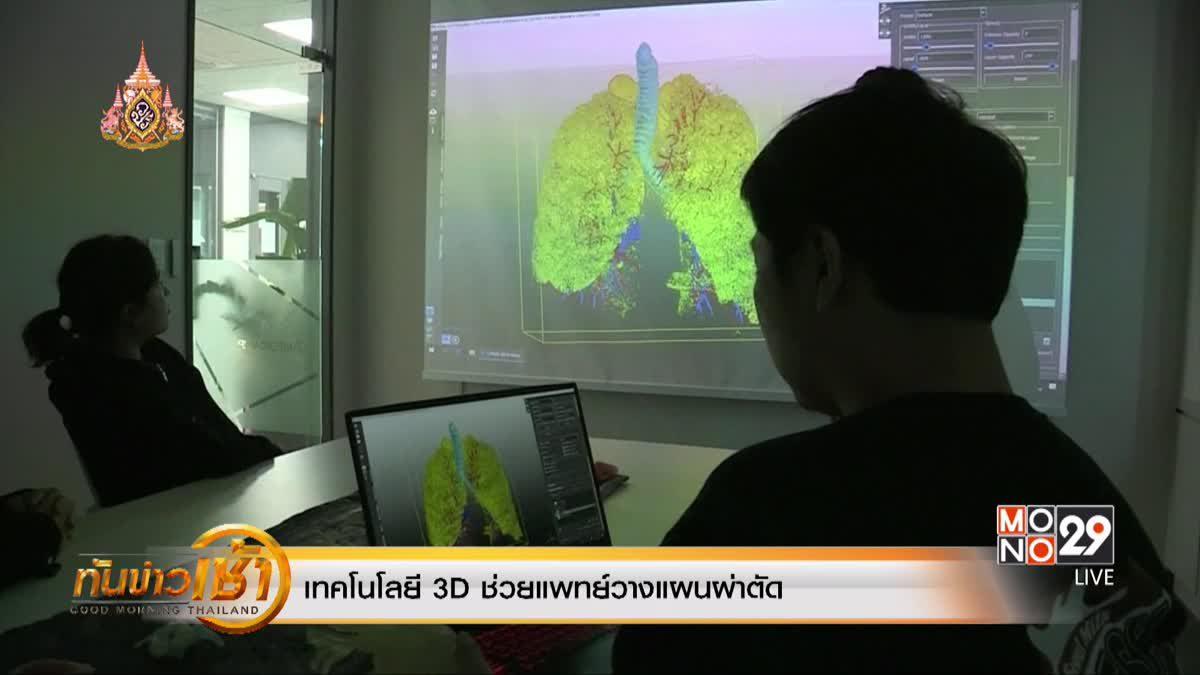 เทคโนโลยี 3D ช่วยแพทย์วางแผนผ่าตัด