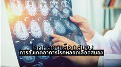 โรคหลอดเลือดสมอง สมองขาดเลือดไปเลี้ยง