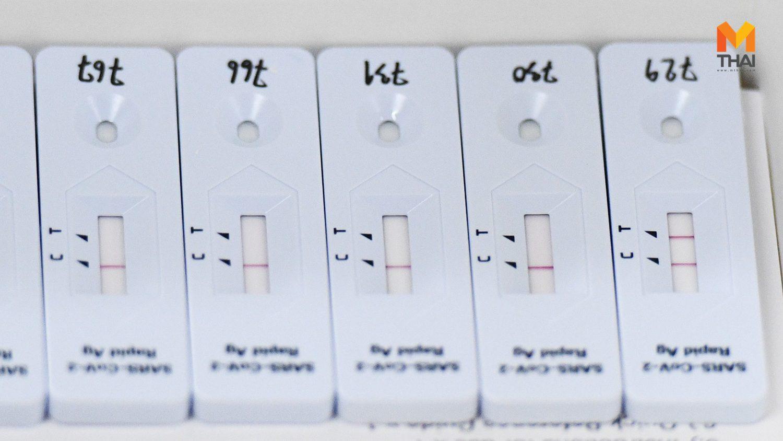 บอร์ด สปสช. มีมติจัดซื้อชุดตรวจโควิด Antigen Test Kit กว่า 8.5 ล้านชุด