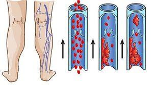 โรคหลอดเลือดดำอุดตัน อันตรายร้ายแรง ที่ยังไม่ค่อยเป็นที่รู้จัก