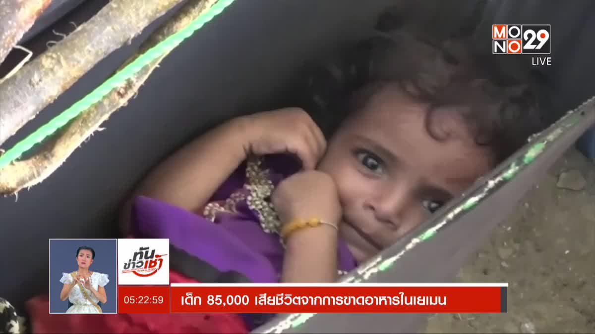 เด็ก 85,000 เสียชีวิตจากการขาดอาหารในเยเมน