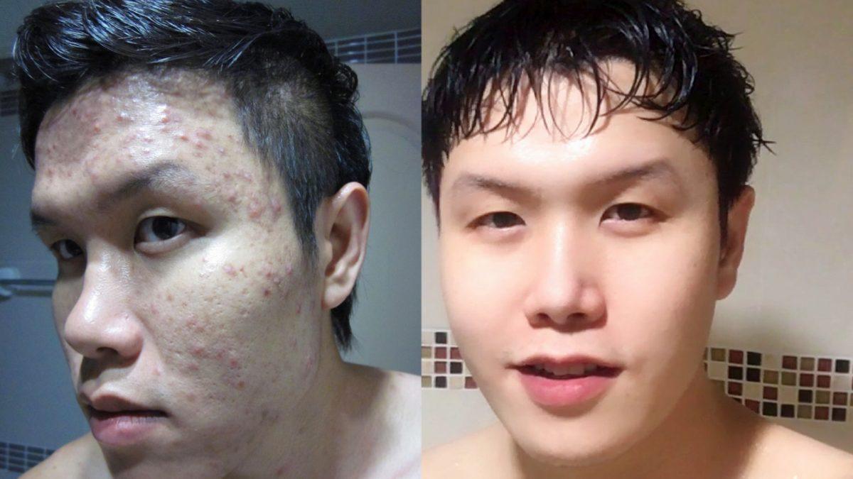วิธีรักษาสิวอักเสบ สิวเห่อ จากการแพ้เครื่องสำอาง / How to treat acne due to cosmetic allergies