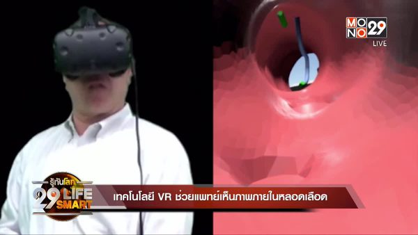 29 LifeSmart : เทคโนโลยี VR ช่วยแพทย์เห็นภาพภายในหลอดเลือด