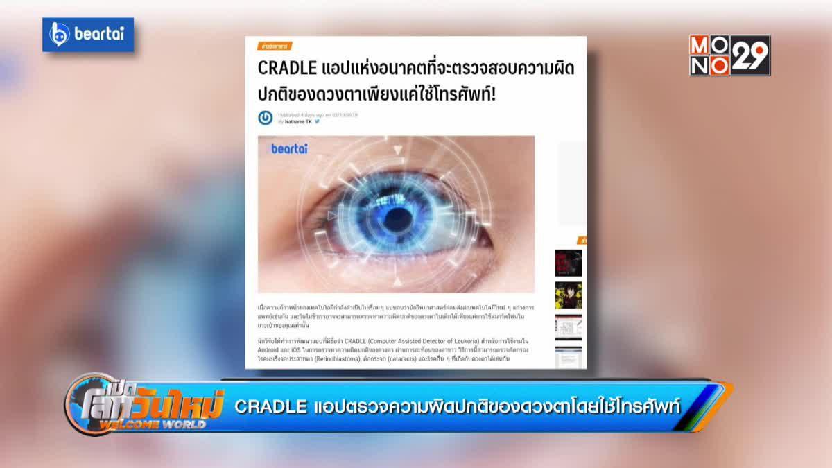 CRADLE แอปตรวจความผิดปกติของดวงตาโดยใช้โทรศัพท์