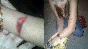 สาวโวยถูกตร. ตั้งด่านตีจนแขนเหวอะ ด้าน ผกก. ตั้งกรรมการ สอบด่วน