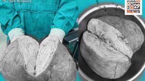ภาพชวนขนลุก เนื้องอกยักษ์ในมดลูก แนะหญิงสาวกลุ่มเสี่ยงดูแลตัวเอง อย่าอายไปพบแพทย์