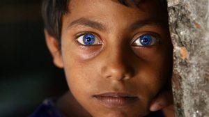 เด็กชายบังคลาเทศ ผู้มีดวงตาเป็นสีฟ้าเหมือนไพลิน สวยมากๆ