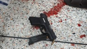 หนุ่มราชทัณฑ์หึงโหด ยิงแฟนสาวดับ รพ. ก่อนยิงตัวเองบาดเจ็บสาหัส