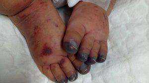 วอนบริจาคเกล็ดเลือด ช่วยหนูน้อยวัย 4 เดือน ญาติเผยน้องติดเชื้อในกระแสเลือด