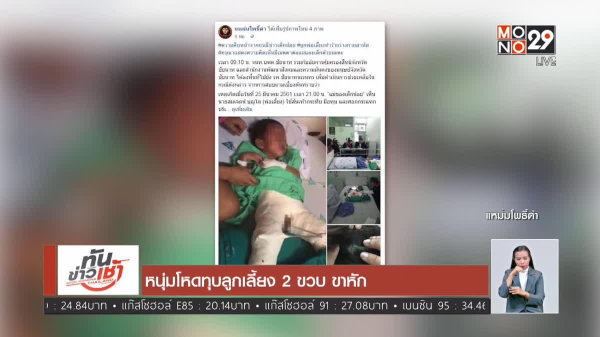 หนุ่มโหดทุบลูกเลี้ยง 2 ขวบ ขาหัก