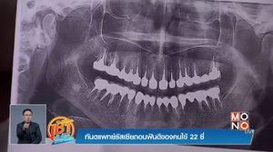 ซวย !! สาวใหญ่จ่าย 5 แสน ทำฟัน ถูกหมอถอนฟันดี 22 ซี่ จนต้องใส่ฟันปลอม