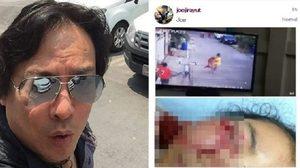 'โจ นูโว' ฉะปมสุนัขกัดคน โวยทำไมยอมความได้ แต่คนทำร้ายหมากลับเป็นคดี