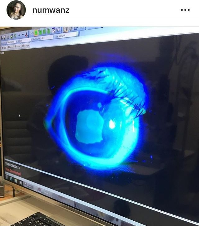 ภาพดวงตาของ นาวิน ตาร์ ที่สเปรย์เข้าตา