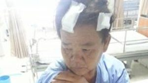 ร้องโซเชียล! แม่ถูกเพื่อนบ้านทำร้าย เหตุฉุนหลานวิ่งชนแก้วแตกในงานแต่ง