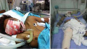 วอนบริจาคเลือด! ช่วยหนุ่มบุรีรัมย์ ปอดฉีก แขนขาหัก เลือดไหลไม่หยุด