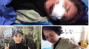 สาวจีนโพสต์ภาพสยอง วอนจนท.ล่าคนร้าย หลังใช้ขวดทุบกรีดหน้าจนเสียโฉม