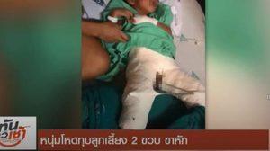 พ่อเลี้ยง ฉุน ทุบลูกเลี้ยงวัย 2 ขวบ ขาหักเหตุฉี่รดที่นอน