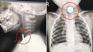 หมอเล่า ผู้ปค.ปฏิเสธไม่ให้รักษาเด็กเหรียญติดคอ แต่จะให้หมอชาวบ้านรักษาแทน