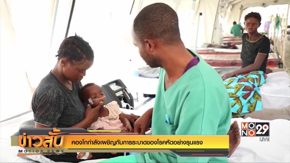 คองโกกำลังเผชิญกับการระบาดของโรคหัดอย่างรุนแรง