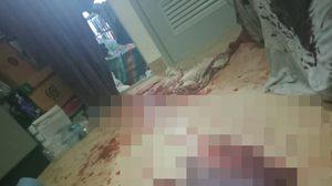 สาวป่วยซึมเศร้าโพสต์ภาพสยองเลือดนองพื้น แนะผู้ป่วยอย่าริขาดยา
