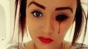 สยอง ! หญิงสาวร้องไห้เป็นสายเลือดวันละหลายครั้ง ทั้งที่มีสุขภาพดี